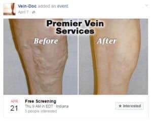 Vein-Doc facebook ad example